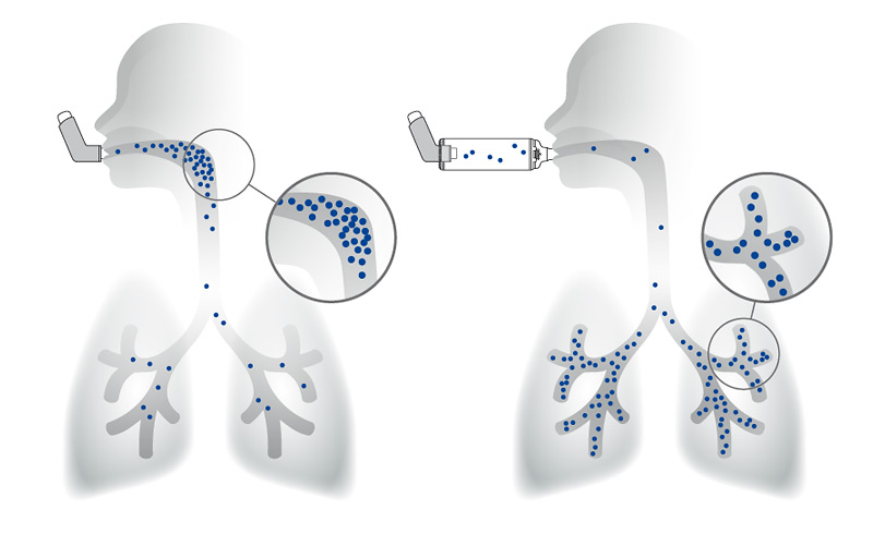 Deposition des Wirkstoffs in der Lunge mit und ohne Inhalierhilfe